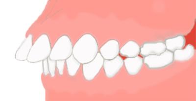 出っ歯画像