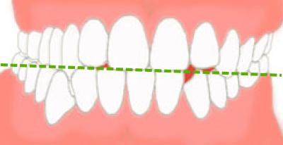 顎の偏位画像