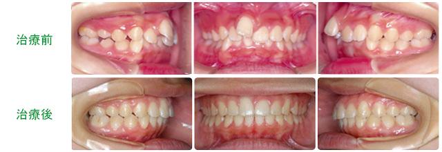 小臼歯を抜歯しないで(非抜歯)治療