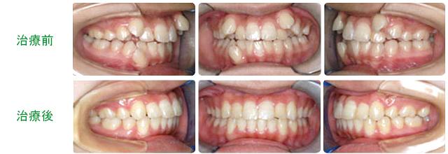小臼歯を抜歯して治療