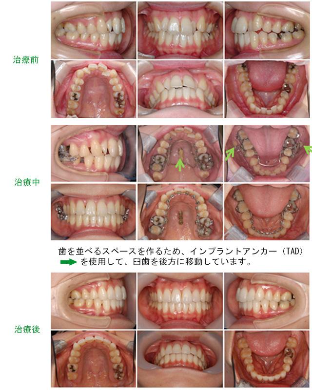 小臼歯を抜歯して治療画像
