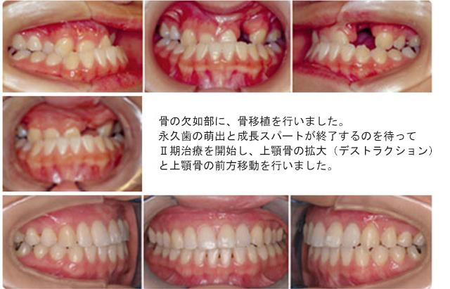 骨の欠如部に、骨移植を行いました。 永久歯の萌出と成長スパートが終了するのを待って Ⅱ期治療を開始し、上顎骨の拡大(デストラクション) と上顎骨の前方移動を行いました。