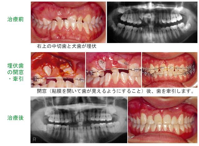 矯正歯科治療で正常な位置に誘導したケース