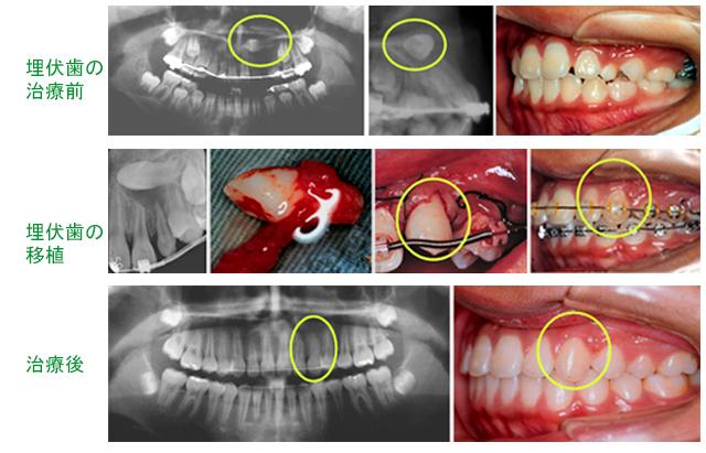 矯正歯科治療と歯牙移植を併用したケース