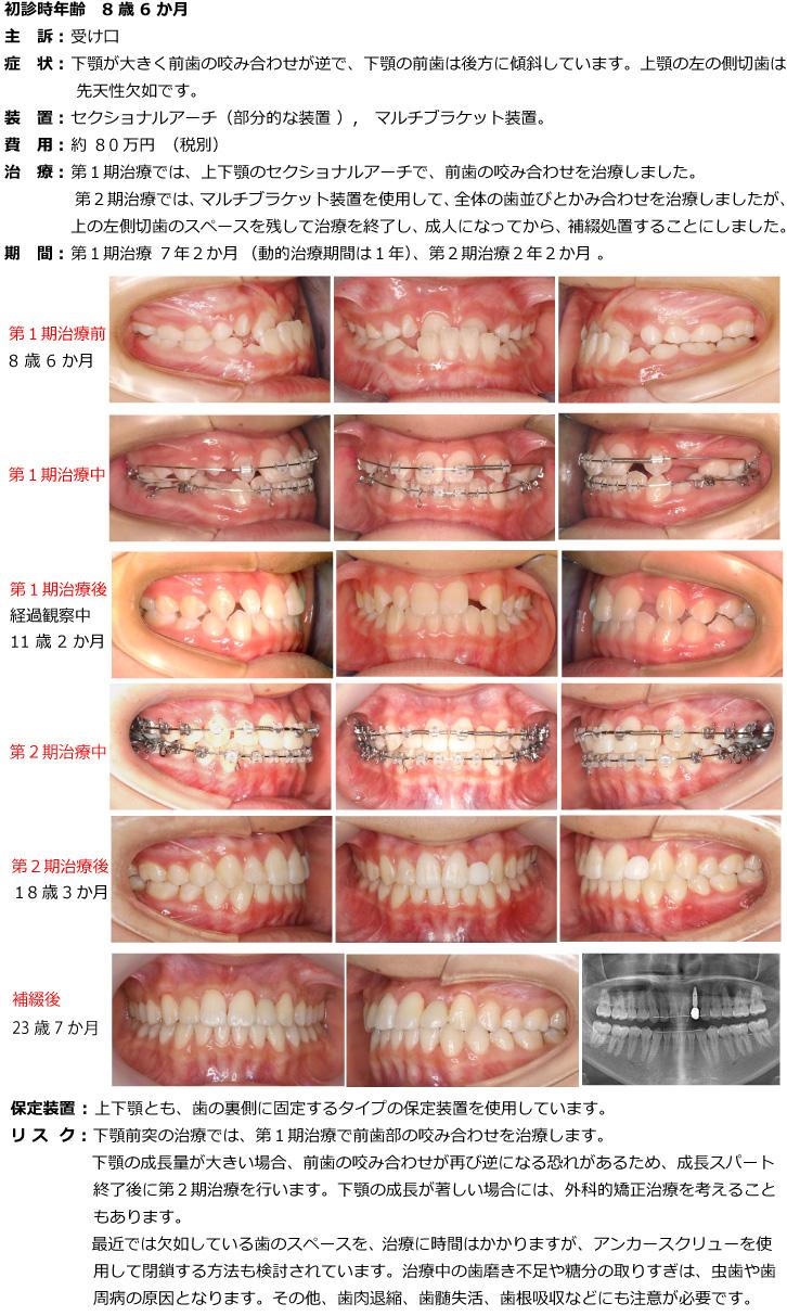 小臼歯を抜かない(非抜歯)で治療した症例
